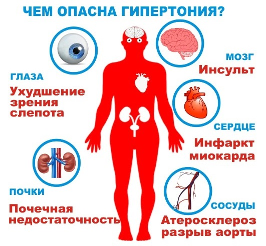 Ночная гипертония: причины, лечение - Медицина