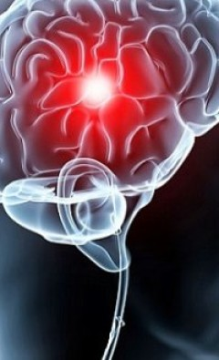 Цефалгический синдром и вегетососудистая дистония: симптомы, лечение
