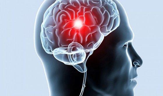 Цефалгический синдром при ВСД