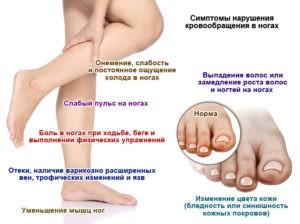 Причины слабости в ногах