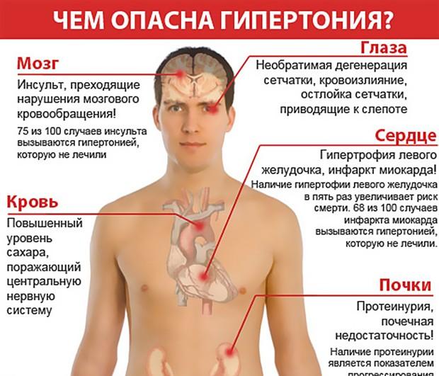 гипертония всд