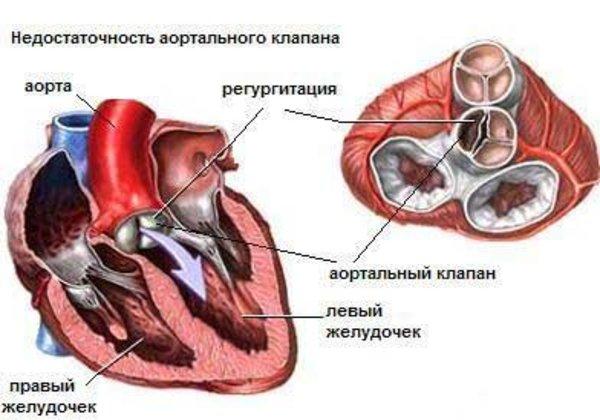 аортит
