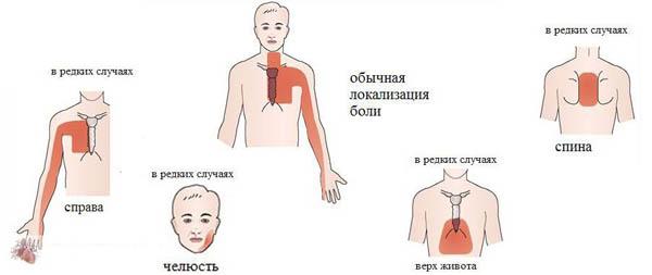Причины появления болей